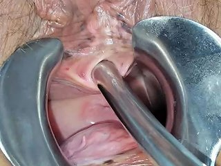 Peehole And Speculum Play Free Free Speculum Hd Porn 67